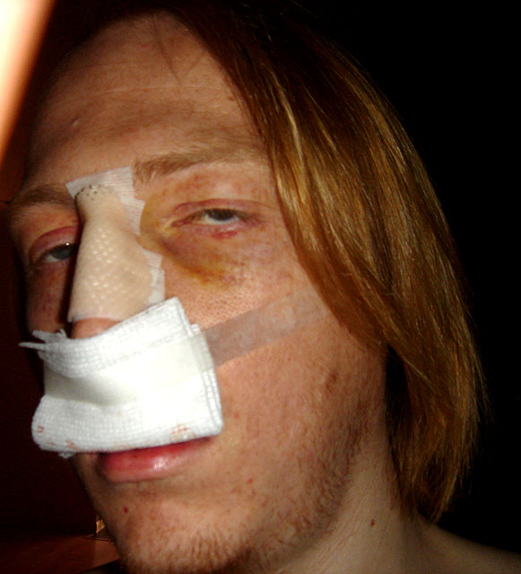 broken nose boxing. be my last roken nose…